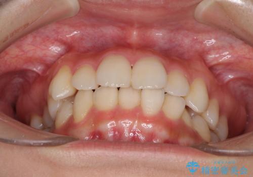 インビザラインを用いた非抜歯矯正の治療前