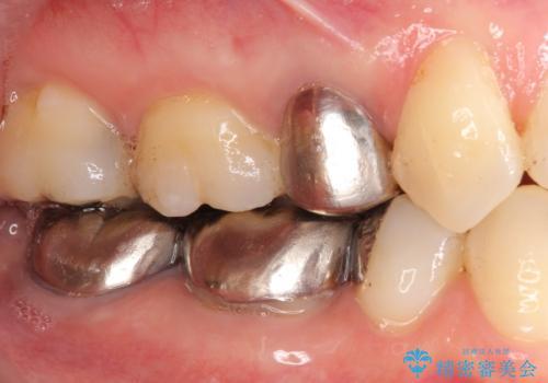 低予算で銀歯を白くしたい 50代女性の症例 治療前