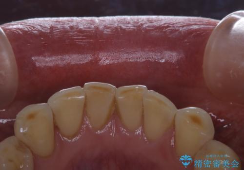 前歯のセラミックのチェックも合わせてPMTCでメンテナンスの治療前