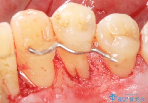 歯がぐらぐら 再生療法で抜かずに残す 50代男性の症例 治療後