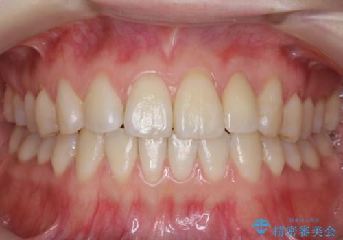 前歯が気になる 大人のマウスピース矯正 矮小歯を整えるの症例 治療後
