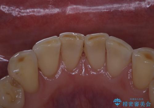 前歯のセラミックのチェックも合わせてPMTCでメンテナンスの治療後