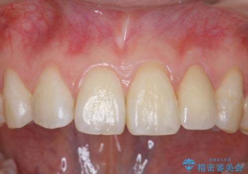 小さい前歯を整える セラミック矯正の症例 治療後