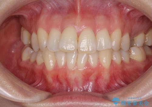 急速拡大装置で奥歯の咬み合わせを改善 インビザラインによる矯正治療の治療前