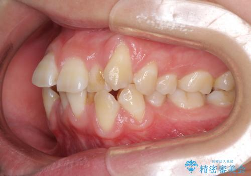 前歯が磨きにくい 目立たないワイヤー装置による矯正治療の治療前