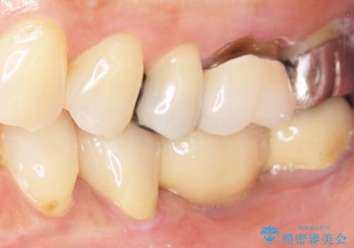 歯が痛い 深いう蝕により神経が死んでいる 50代女性の治療後