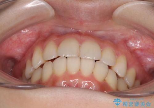 インビザラインを用いた非抜歯矯正の治療後