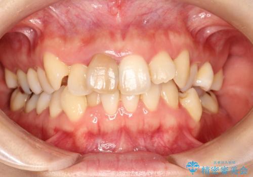 上下のガタガタのマウスピースによる非抜歯矯正の症例 治療前