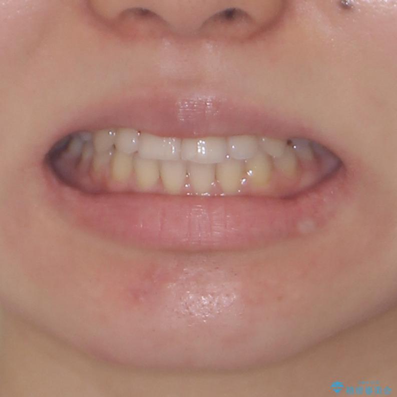 目立ちにくい抜歯矯正 ハーフリンガルの治療後(顔貌)