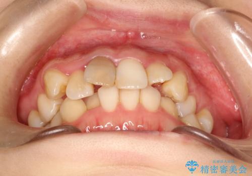 上下のガタガタのマウスピースによる非抜歯矯正の治療前