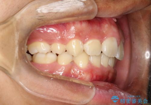 重度のガタガタ ワイヤーによる抜歯矯正の治療後