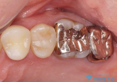 歯ぐきから出る膿 何度治療しても治らない 精密根管治療 50代男性の治療前