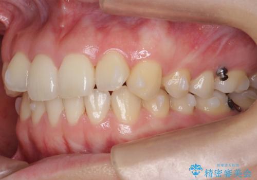 下の前歯が1本短い インビザラインと部分矯正の組み合わせの治療中