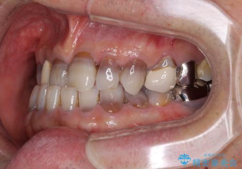 下の歯が前に出てしまう咬み合わせを治したい インビザラインによる矯正治療の治療前