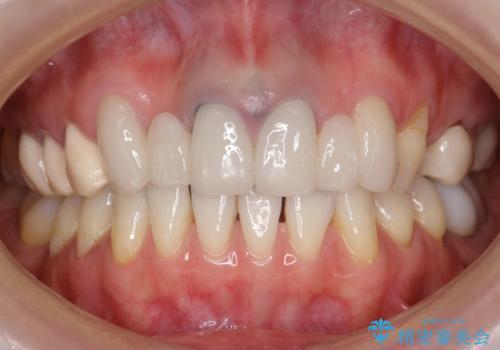 他院で仮歯まで入れたが違和感がある 40代女性の治療前