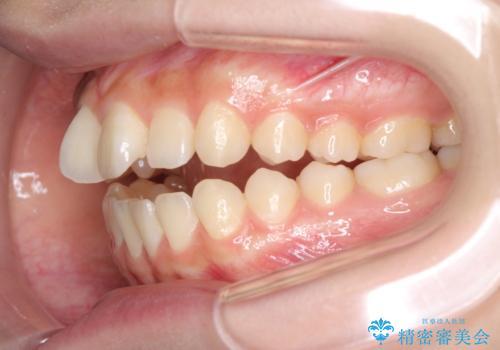 話しにくいオープンバイト ワイヤー装置による抜歯矯正治療の治療前