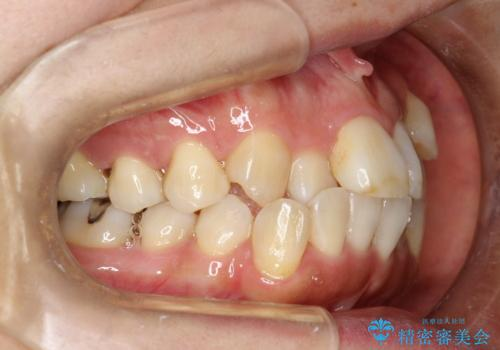 矯正治療が始まる前に歯のお掃除の治療前