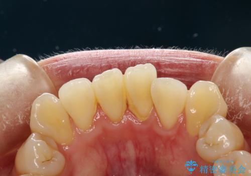 矯正治療が始まる前に歯のお掃除の症例 治療前