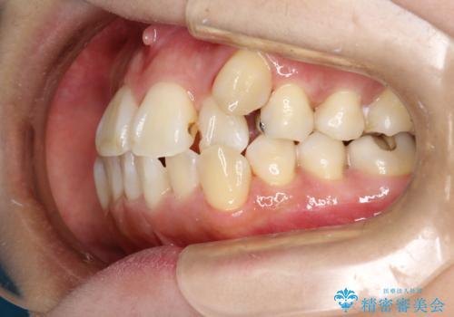 矯正治療が始まる前に歯のお掃除の治療後