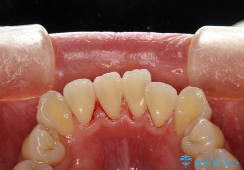 矯正治療が始まる前に歯のお掃除の症例 治療後