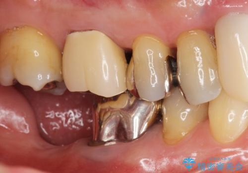 骨が少なくインプラントできないと言われた 下の奥歯のインプラント 60代男性の治療前