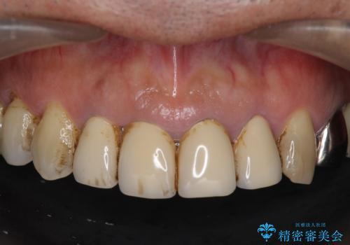 老朽化した前歯のクラウンやりかえの治療前