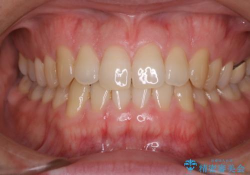 フロスが通せない PMTCで本来の歯のすき間にの治療前