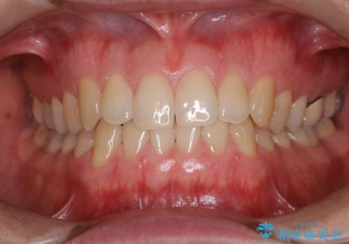 フロスが通せない PMTCで本来の歯のすき間にの治療後