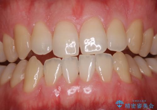 フロスが通せない PMTCで本来の歯のすき間にの症例 治療後