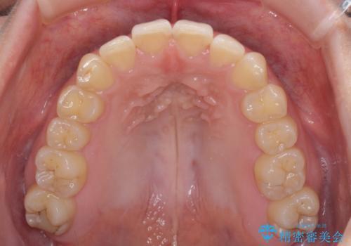 顎が痛くなる咬み合わせが気になる 想定していなかった矯正治療を行うことにの治療中