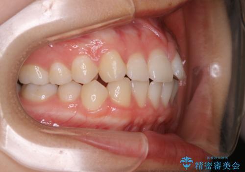 前歯のがたつきをインビザラインで治療の治療前
