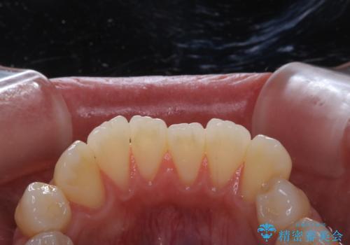 歯のクリーニングで歯周病の予防の治療前