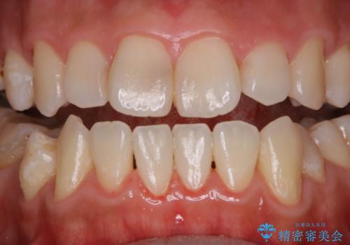 歯のクリーニングで歯周病の予防の治療後