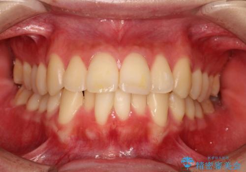 口元が出てるの気になる ハーフリンガルによる抜歯矯正での横顔改善の治療前