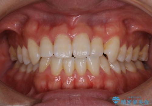 歯医者でホワイトニング 1日で白い歯にの症例 治療前