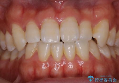 歯医者でホワイトニング 1日で白い歯にの治療前