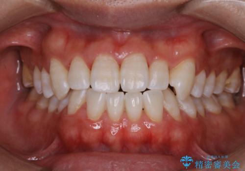 歯医者でホワイトニング 1日で白い歯にの症例 治療後