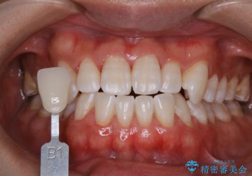 歯医者でホワイトニング 1日で白い歯にの治療後