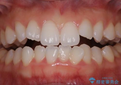 成人式の前撮り前に歯をきれいにしたい 初めてのPMTCの治療前