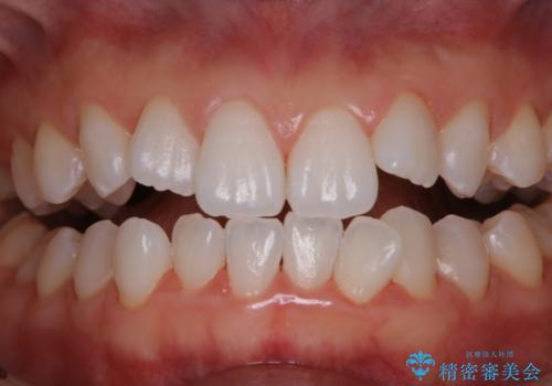 成人式の前撮り前に歯をきれいにしたい 初めてのPMTCの治療後
