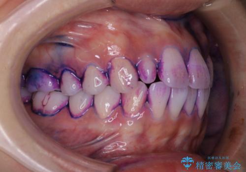 1カ月前に他院でクリーニングを受けたが舌触りが気になる PMTCでツルツルにの治療前