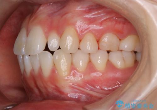 1カ月前に他院でクリーニングを受けたが舌触りが気になる PMTCでツルツルにの治療後