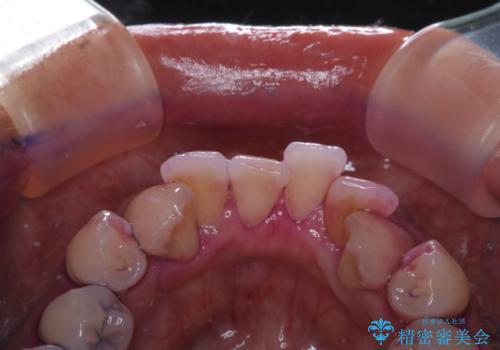 矯正治療が始まる前に歯磨きチェックとクリーニングの治療前