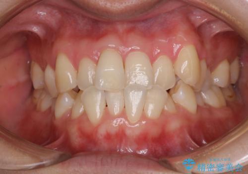 矯正治療が始まる前に歯磨きチェックとクリーニングの治療後