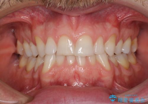 抜歯矯正の後戻りが気になる インビザライン・ライトによる矯正治療の治療前