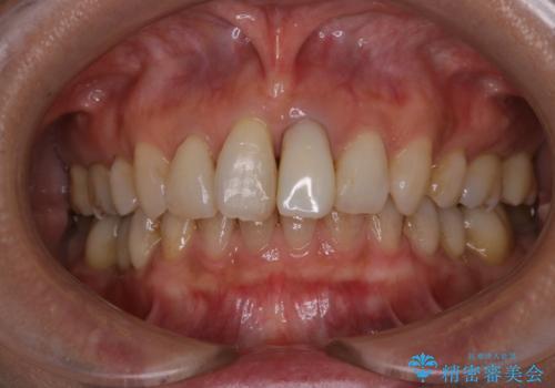 前歯の治療中にきれいに歯のクリーニングの治療前