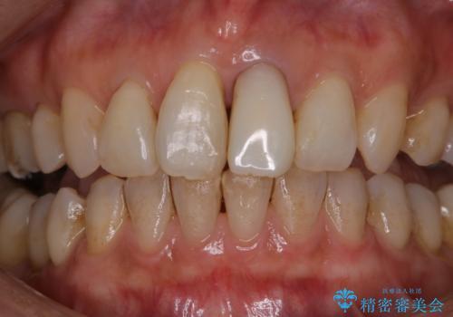 前歯の治療中にきれいに歯のクリーニングの症例 治療前