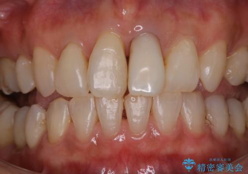 前歯の治療中にきれいに歯のクリーニングの症例 治療後
