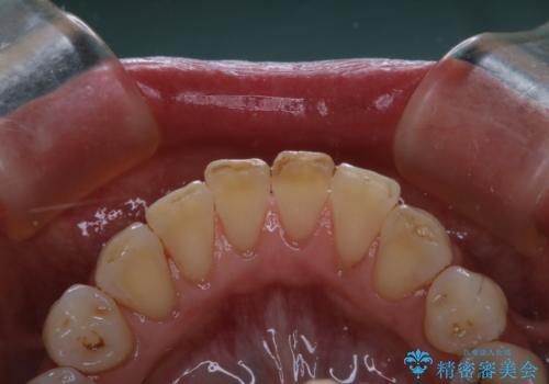 前歯の治療中にきれいに歯のクリーニングの治療後