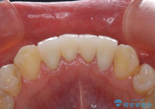 インプラントの2次手術前にPMTCで清潔な口腔内にの治療前